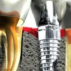 Имплантация зубов. Личный опыт