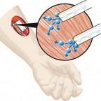Биоразлагаемые батарейки в теле человека